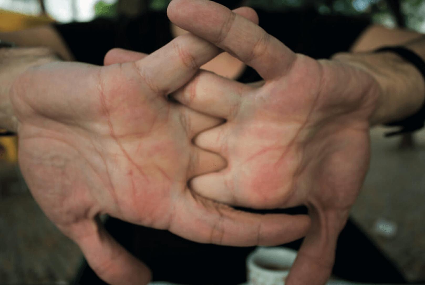 קנאקים באצבעות לא מזיקים או מסוכנים - מדע - מדע פלוס