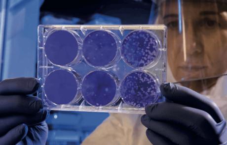 סוף סוף אנחנו מבינים כיצד לחזות את השפעת – והעונה הנוכחית לא נראית טוב